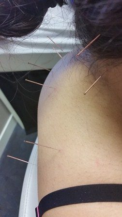 acupuncture, indooroopilly, eastern therapy, brisbane