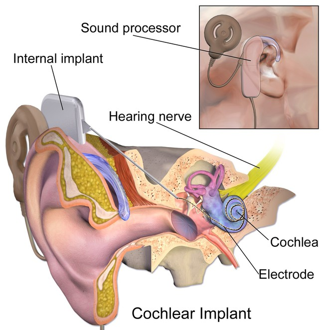 cochlear implant, bionic ear, edical inventions, graeme clark, australian inventions, australian inventors, inventions, inventors, university of melbourne,