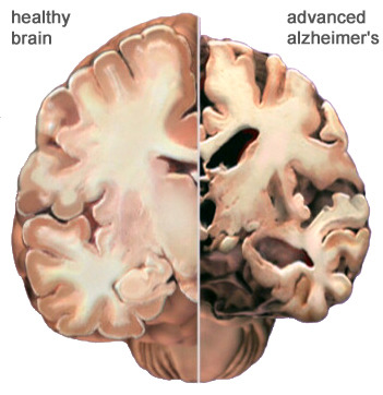 Comparison of a normal and diseased brain from alz.org